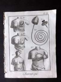 Diderot 1780's Antique Medical Print. Chirurgie 28 Breast Operations